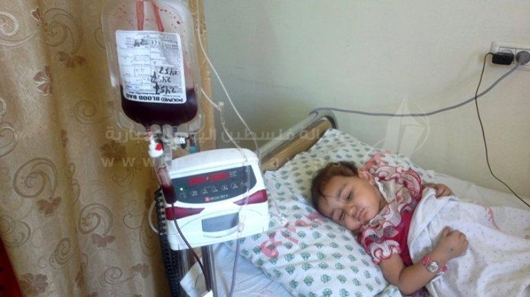 اطفال سرطان